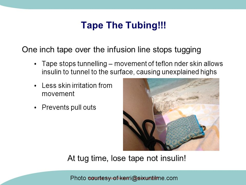 Tape The Tubing!!! One inch tape over the infusion line stops tugging