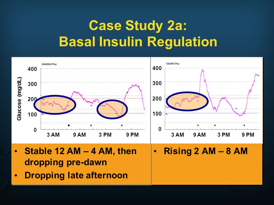 Case Study 2a: Basal Insulin Regulation