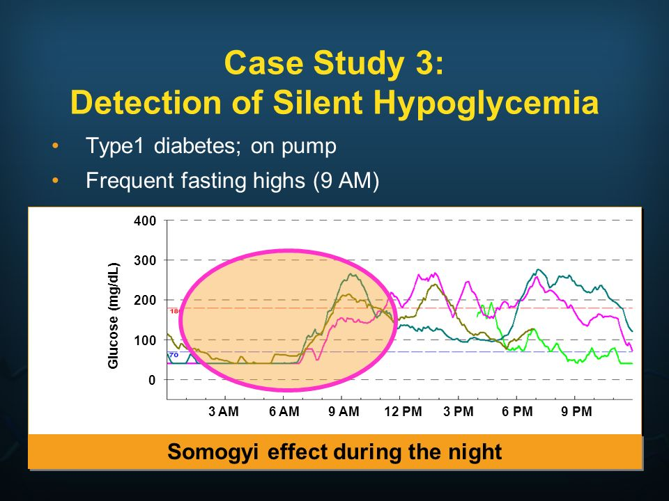 Case Study 3: Detection of Silent Hypoglycemia