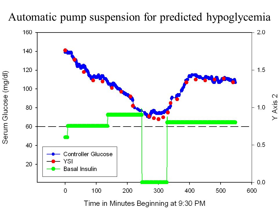 Automatic pump suspension for predicted hypoglycemia