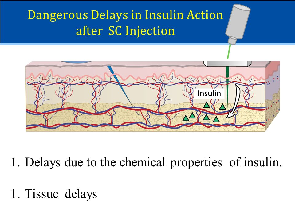 Dangerous Delays in Insulin Action after SC Injection