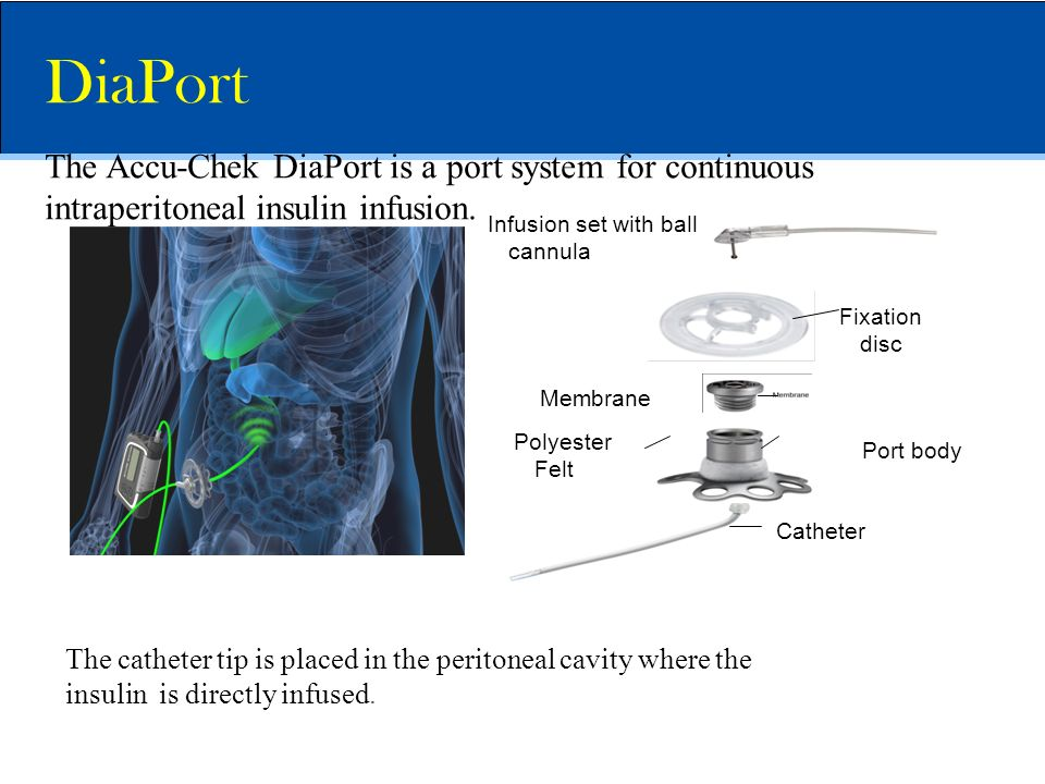 DiaPort The Accu-Chek DiaPort is a port system for continuous intraperitoneal insulin infusion. Fixation disc.