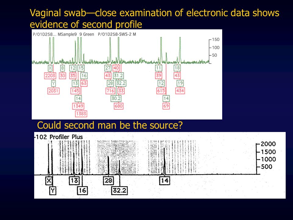 Vaginal swab—close examination of electronic data shows evidence of second profile