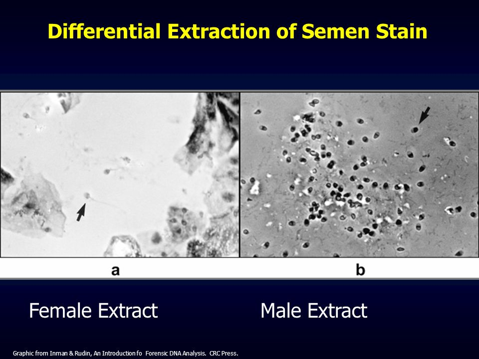 Differential Extraction of Semen Stain