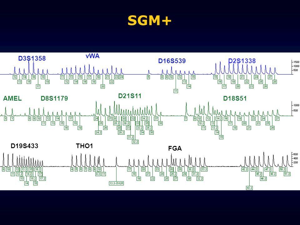 SGM+ vWA D3S1358 D16S539 D2S1338 D21S11 AMEL D8S1179 D18S51 D19S433