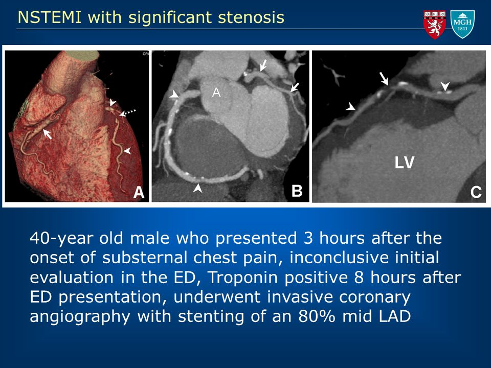 NSTEMI with significant stenosis