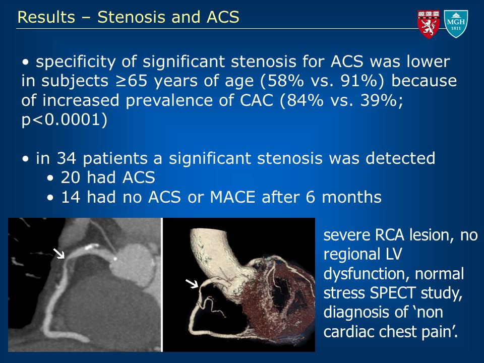 Results – Stenosis and ACS