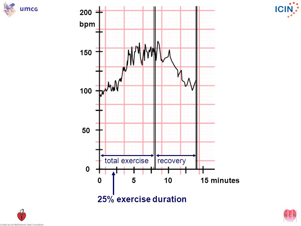 200 bpm 150 100 50 total exercise recovery 0 5 10 15 minutes 25% exercise duration