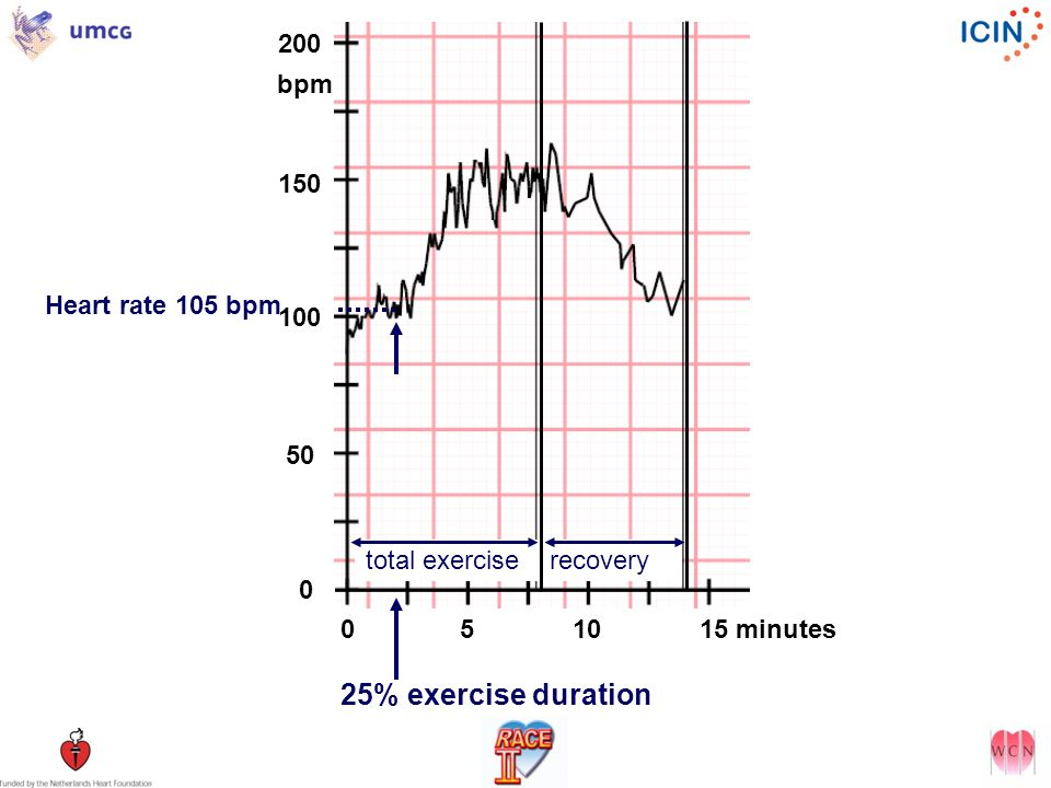 200 bpm. 150. Heart rate 105 bpm. 100. 50. total exercise recovery. 0 5 10 15 minutes.