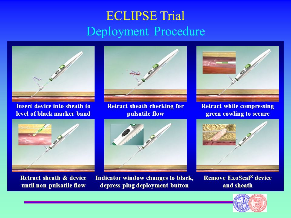 ECLIPSE Trial Deployment Procedure