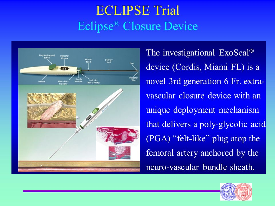 ECLIPSE Trial Eclipse® Closure Device