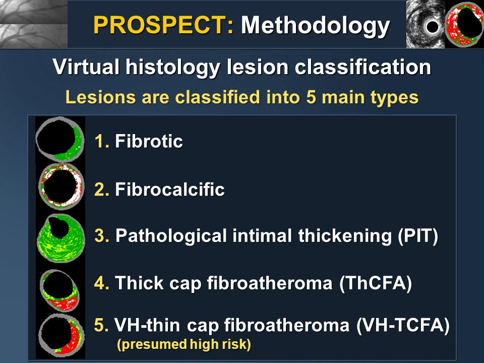 PROSPECT: Methodology Virtual histology lesion classification