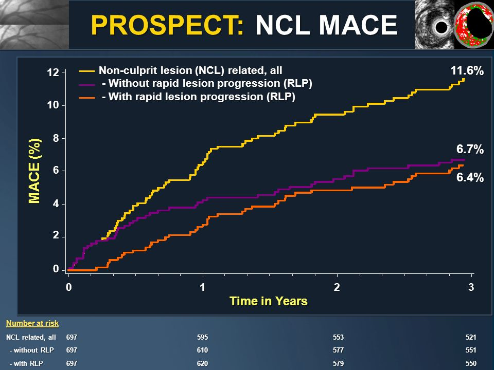 PROSPECT: NCL MACE MACE (%) 11.6% 6.7% 6.4% Time in Years
