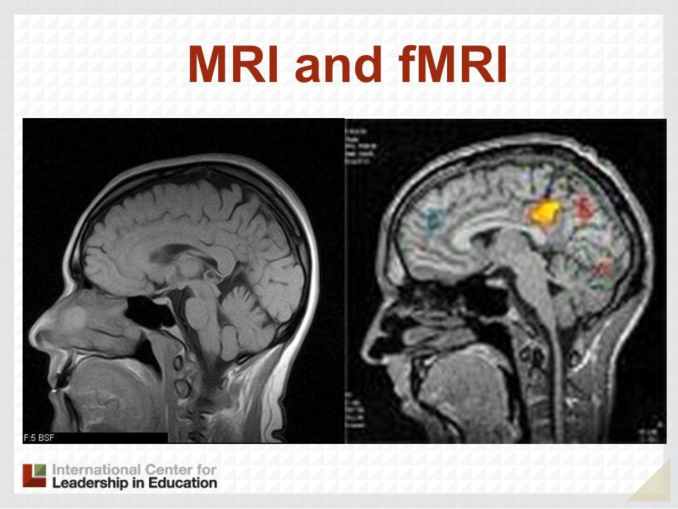 MRI and fMRI