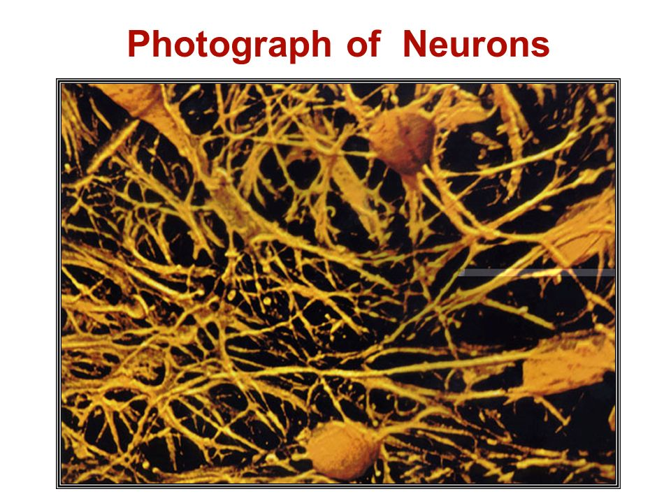 Photograph of Neurons Photo source: The Brain: Our Nervous System by Seymour Simon; Morrow Junior Books, New York 1997.