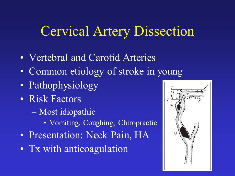 Cervical Artery Dissection