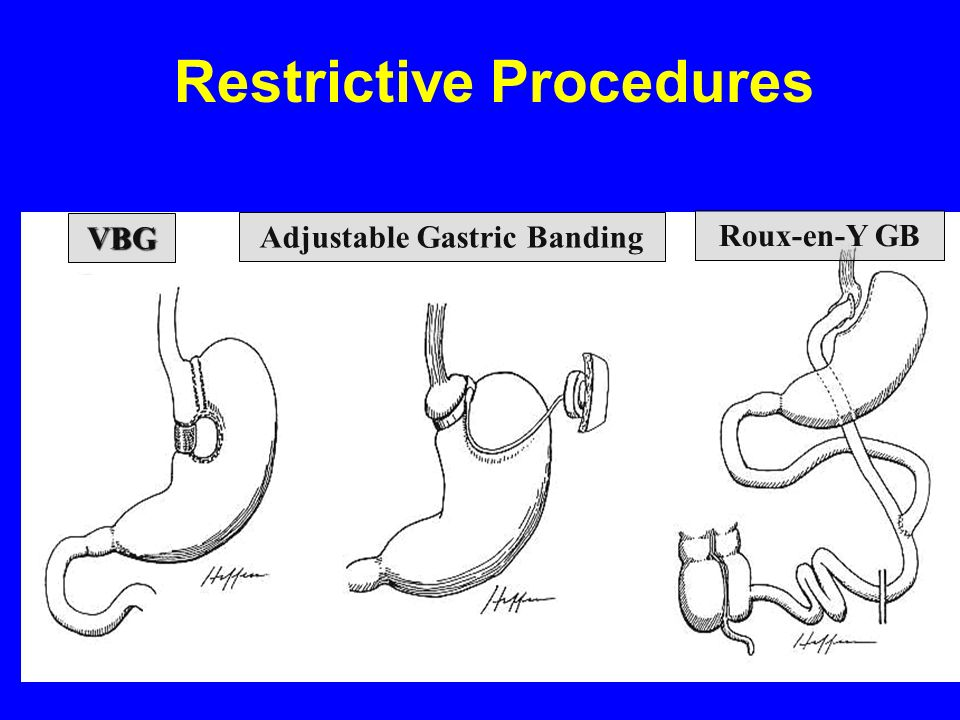 Restrictive Procedures Adjustable Gastric Banding