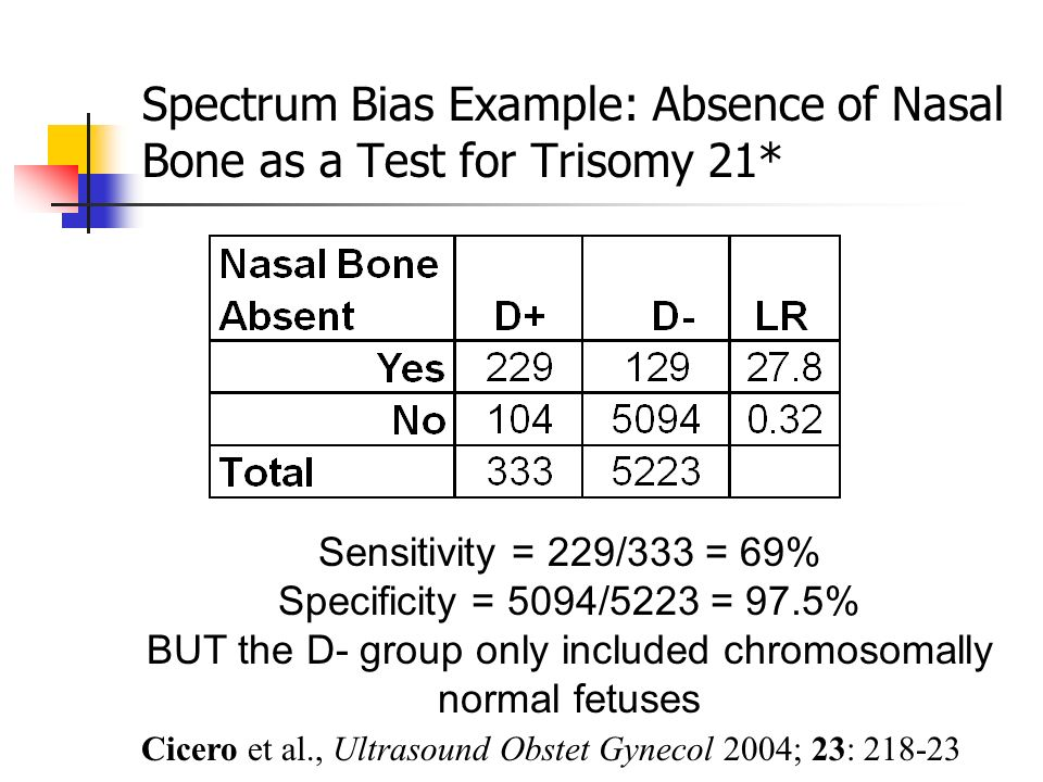 Spectrum Bias Example: Absence of Nasal Bone as a Test for Trisomy 21*