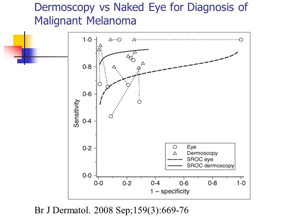 Dermoscopy vs Naked Eye for Diagnosis of Malignant Melanoma
