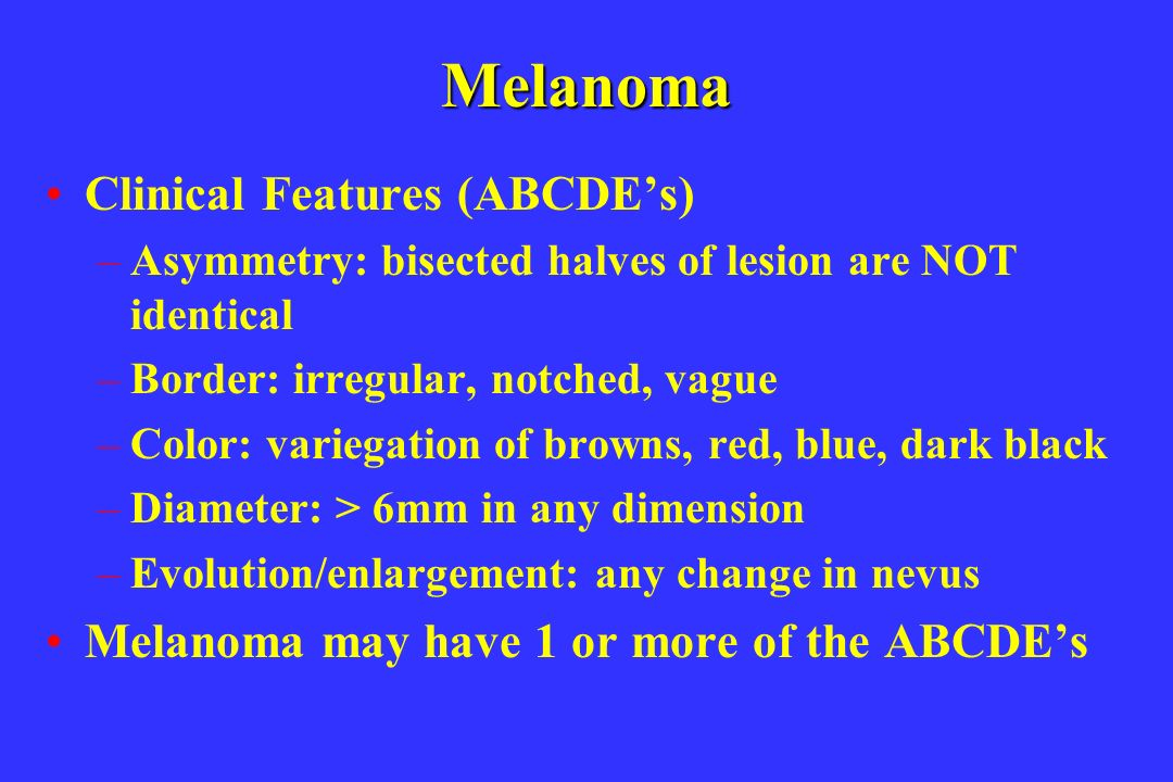 Melanoma Clinical Features (ABCDE's)