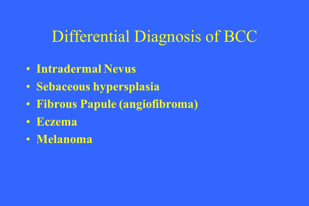 Differential Diagnosis of BCC