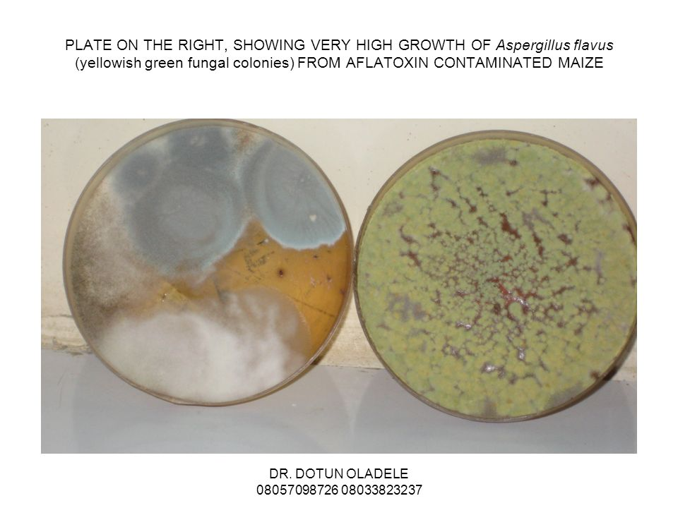 PLATE ON THE RIGHT, SHOWING VERY HIGH GROWTH OF Aspergillus flavus (yellowish green fungal colonies) FROM AFLATOXIN CONTAMINATED MAIZE