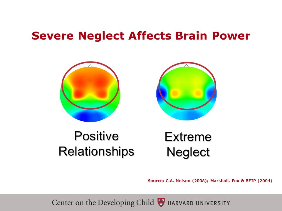 Severe Neglect Affects Brain Power