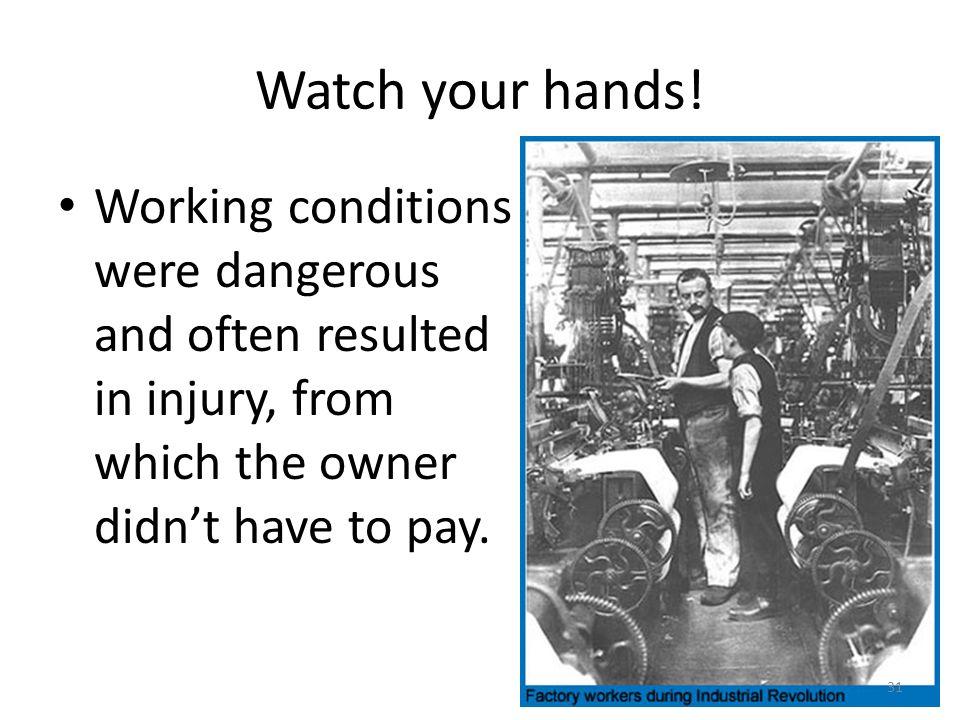 Watch your hands.