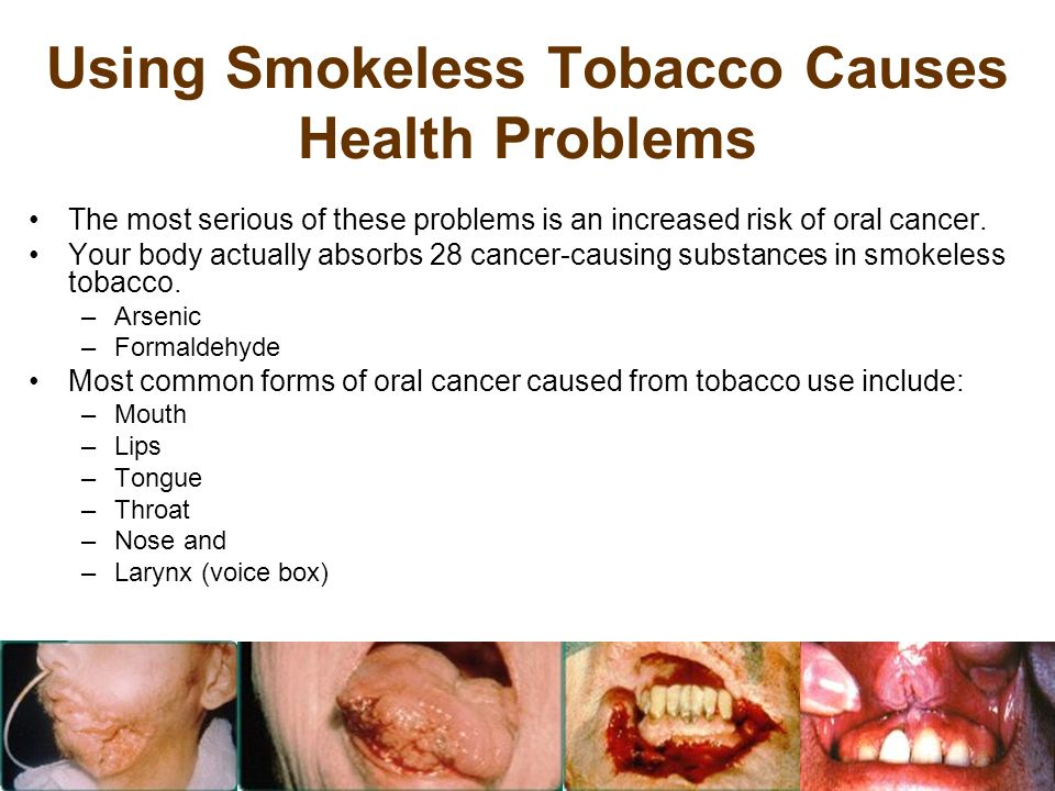 Using Smokeless Tobacco Causes Health Problems