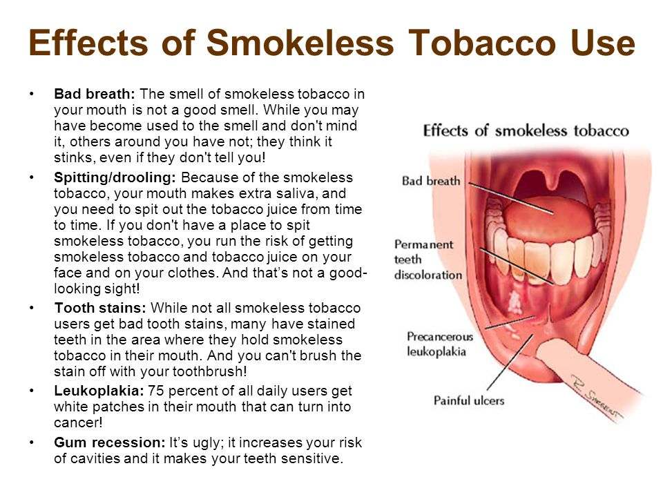 Effects of Smokeless Tobacco Use