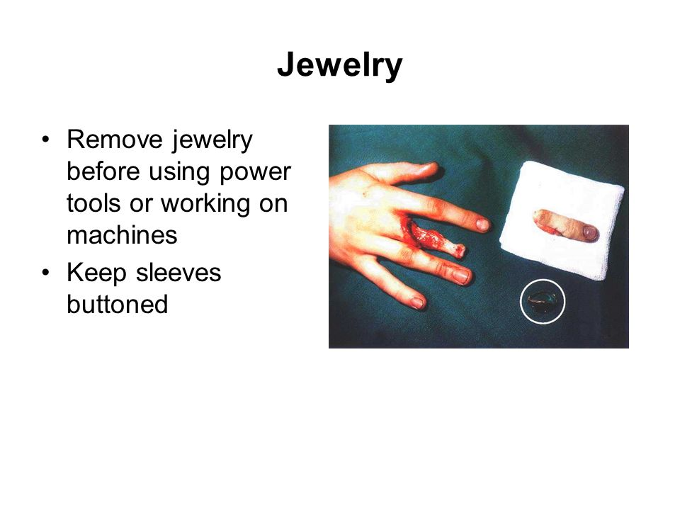 Jewelry Remove jewelry before using power tools or working on machines