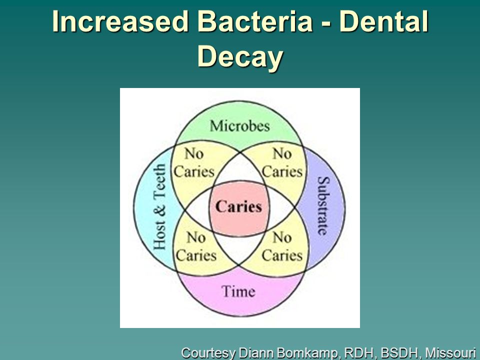Increased Bacteria - Dental Decay