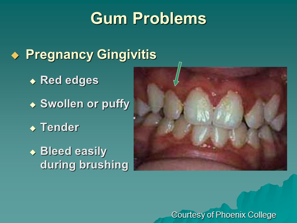Gum Problems Pregnancy Gingivitis Red edges Swollen or puffy Tender