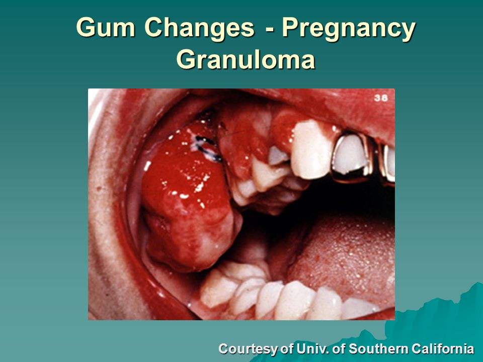 Gum Changes - Pregnancy Granuloma