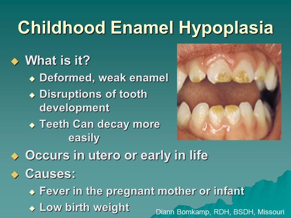 Childhood Enamel Hypoplasia