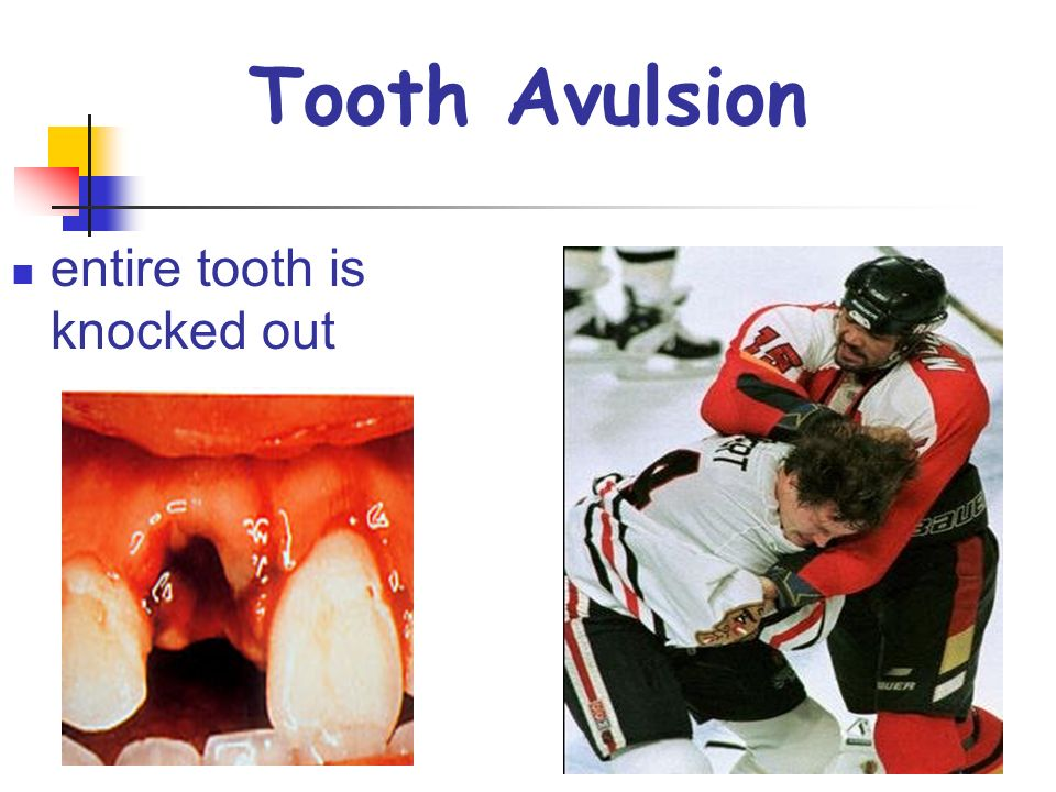 Tooth Avulsion entire tooth is knocked out