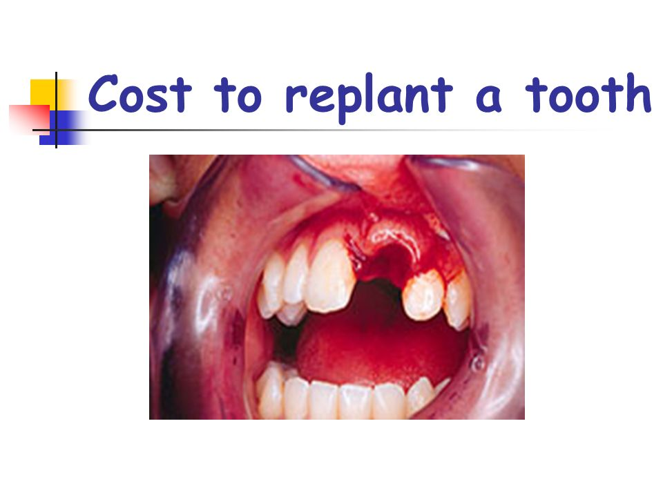 Cost to replant a tooth