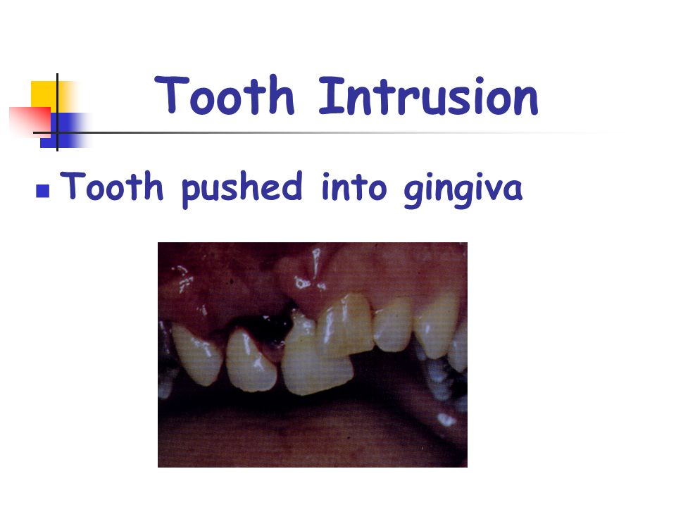 Tooth pushed into gingiva