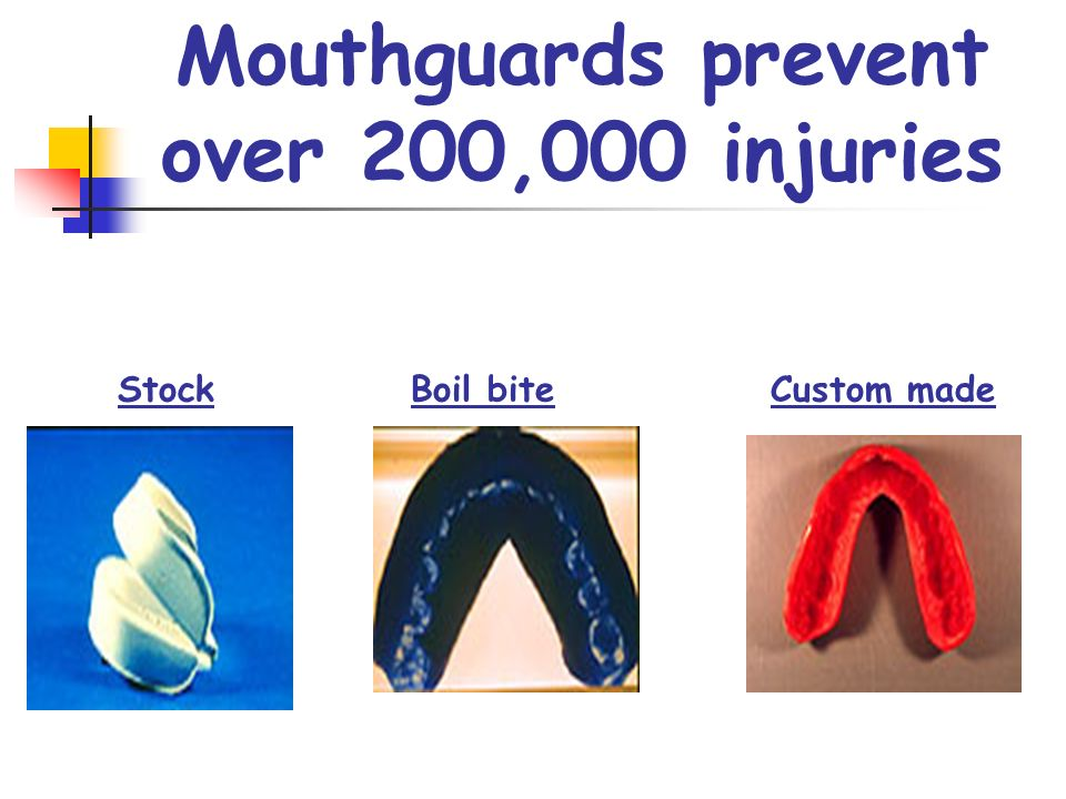 Mouthguards prevent over 200,000 injuries