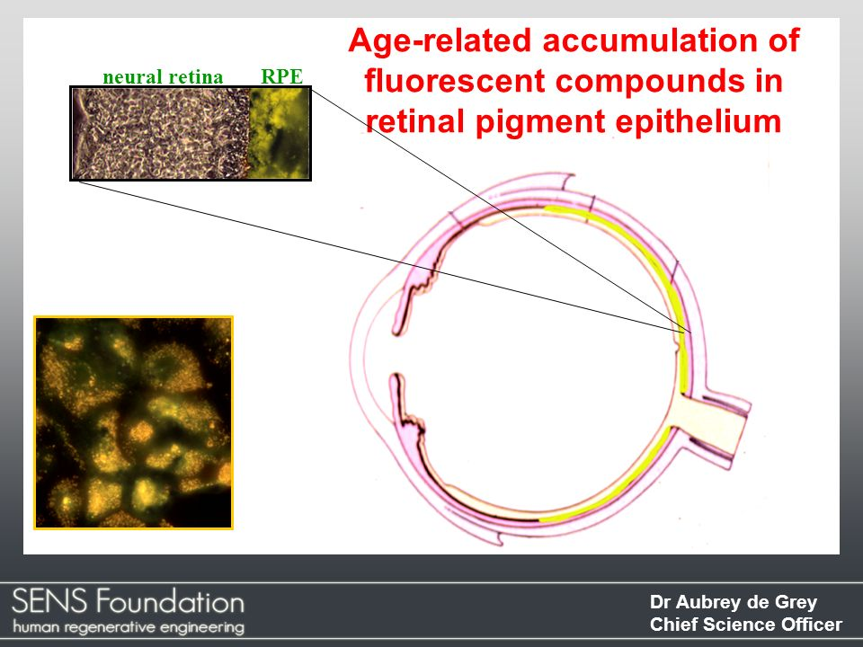 Age-related accumulation of fluorescent compounds in retinal pigment epithelium