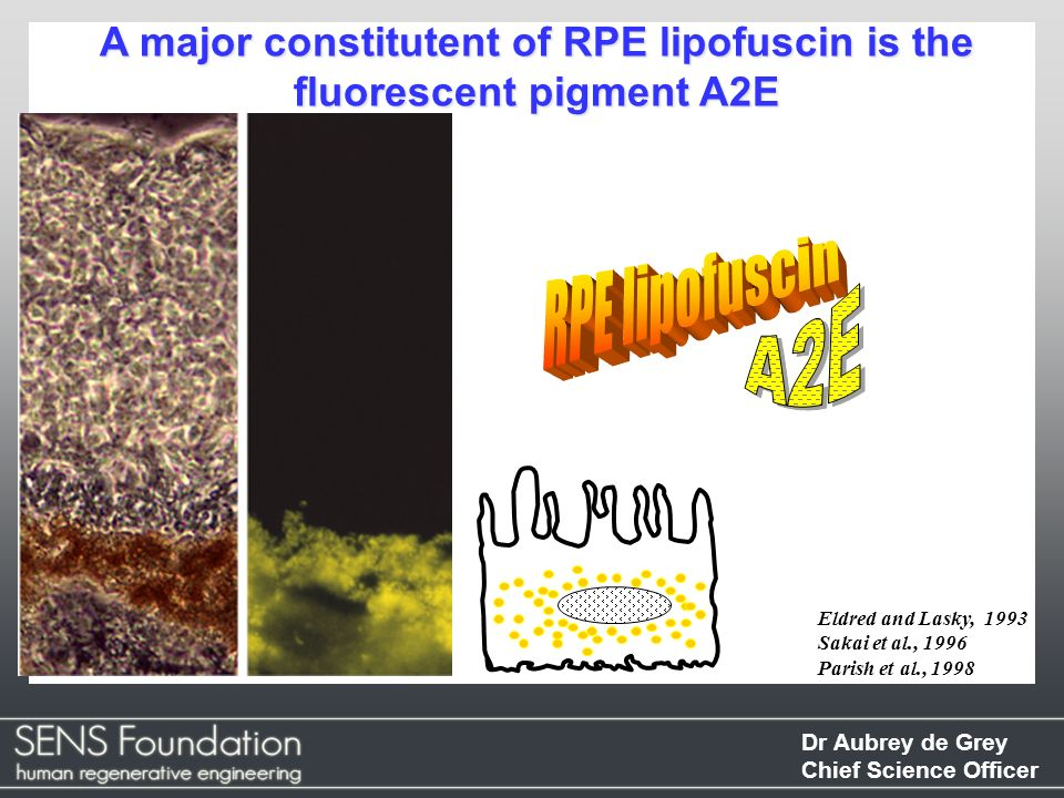 A major constitutent of RPE lipofuscin is the fluorescent pigment A2E