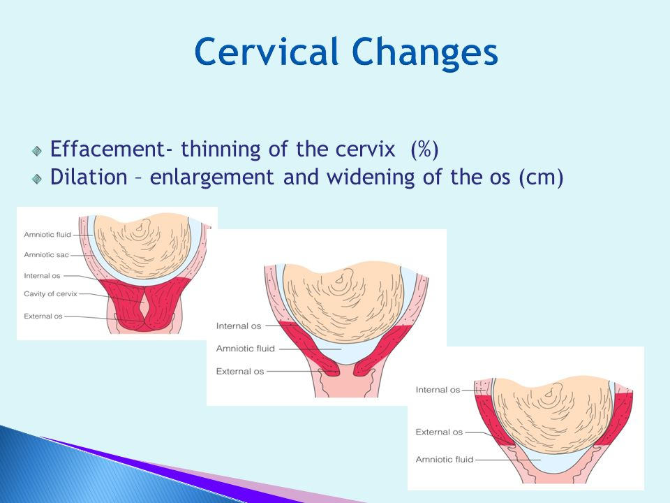 Cervical Changes Effacement- thinning of the cervix (%)