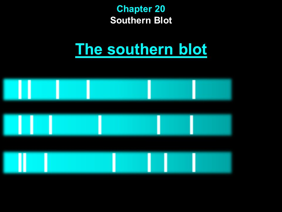 Chapter 20 Southern Blot The southern blot