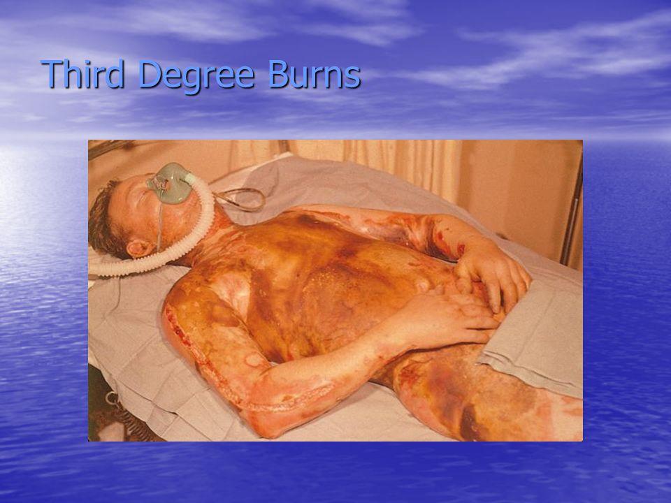 Third Degree Burns