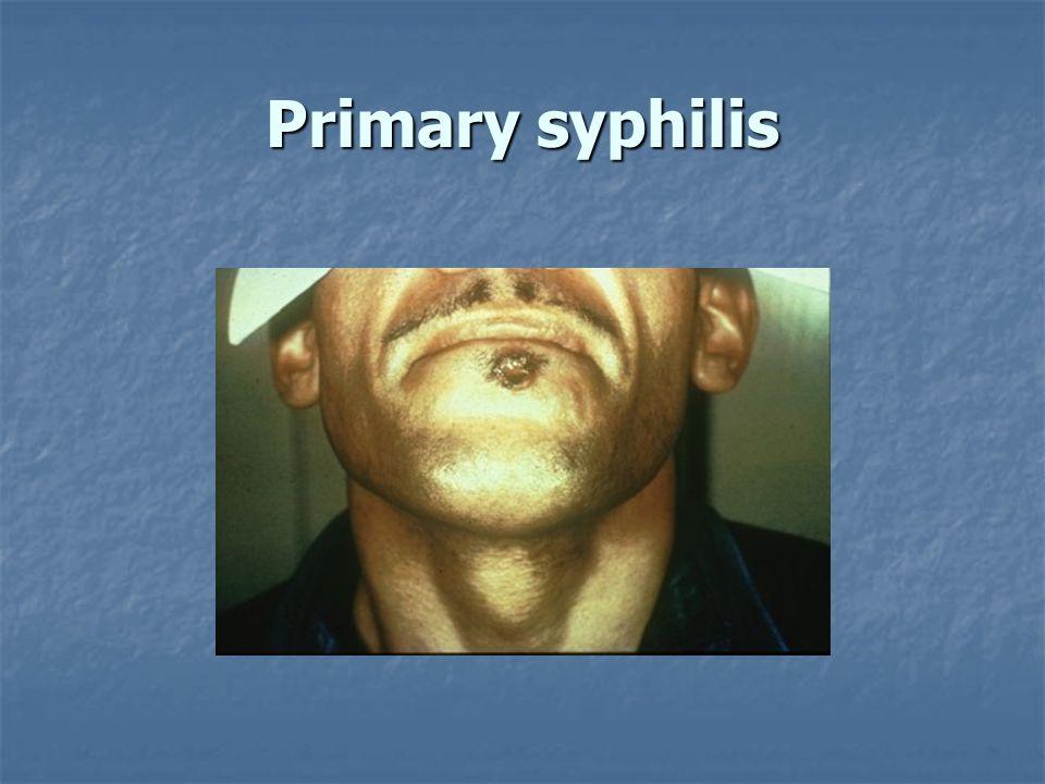 Primary syphilis