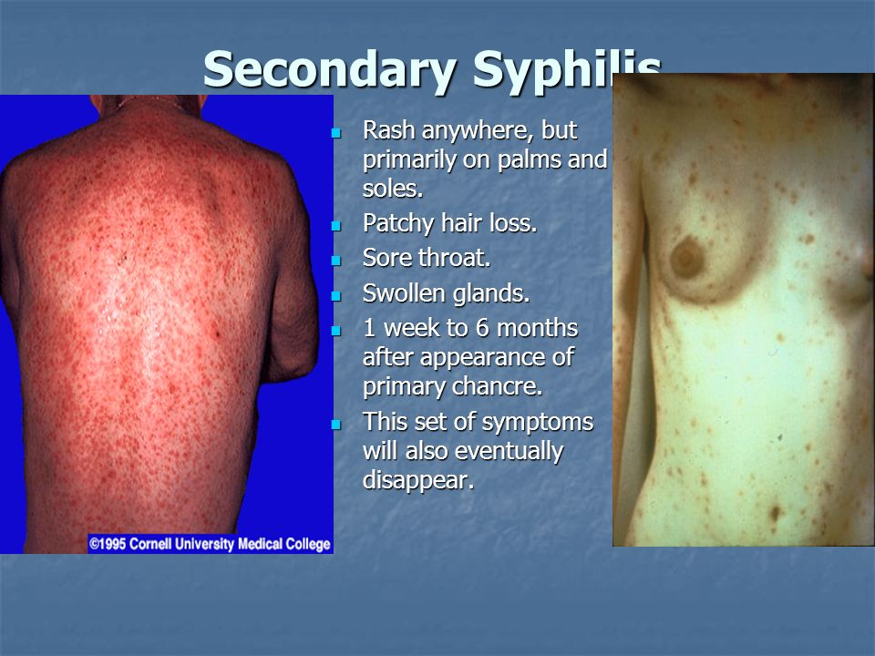 Secondary Syphilis Rash anywhere, but primarily on palms and soles.
