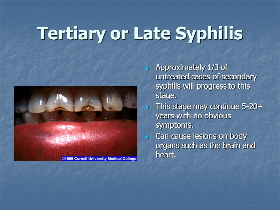 Tertiary or Late Syphilis