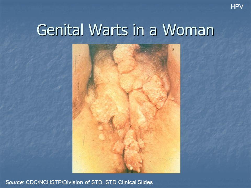 Genital Warts in a Woman