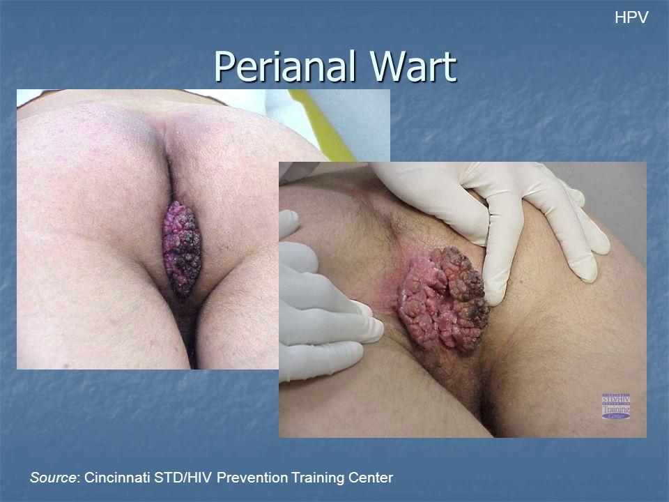 HPV Perianal Wart Source: Cincinnati STD/HIV Prevention Training Center