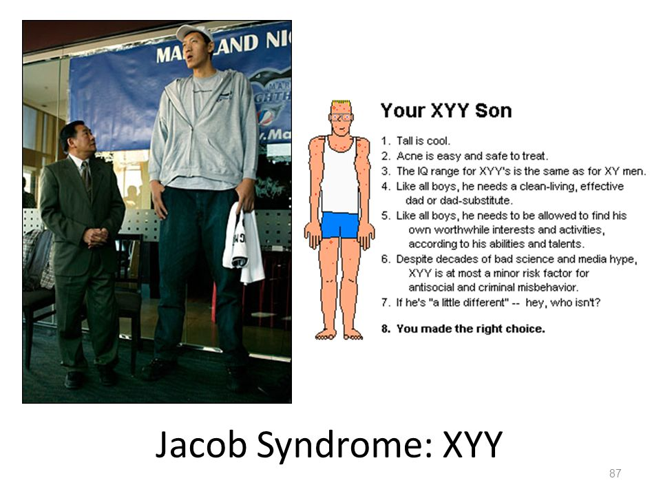 the characteristics of xyy syndrome a rare genetic disorder Gender and genetics turner syndrome is rare with a live-birth frequency affected males have incompletely developed secondary male sex characteristics xyy males.